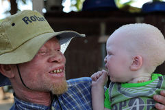 Albino father and son in Ukerewe, Tanzania Stock Image