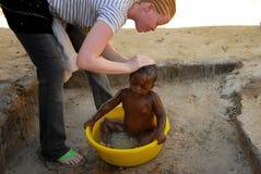 Albino girl stock photography