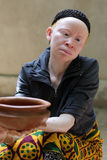 Albino woman in Ukerewe, Tanzania. Many traditional healers have been arrested recently in Tanzania because of albino murders Royalty Free Stock Images