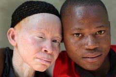 Albinomoder och son i Ukerewe, Tanzania Arkivbilder