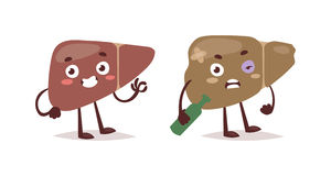 Alcohol harm vector illustration. Alcoholic liver harm disease. Fatty liver fibrosis hepatitis cirrhosis of alcohol harm vector illustration. Lifestyle problem Stock Photos