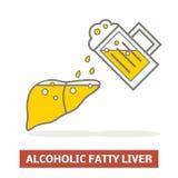 Alcoholic fatty liver Royalty Free Stock Image