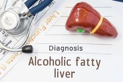 Alcoholic fatty liver diagnosis. Anatomical 3D model of human liver is near stethoscope, results of laboratory tests of liver func. Tion and printed on notepad royalty free stock photo