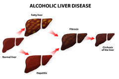 Alcoholic liver disease Royalty Free Stock Image