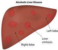 Alcoholic Liver Disease Royalty Free Stock Photo