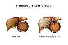 Alcoholic liver disease. Illustration of a healthy liver and alcoholic liver disease stock illustration