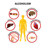 Alcoholism. infographic stock illustration
