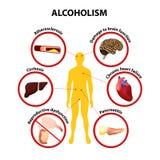 alcoholismo Infographic stock de ilustración