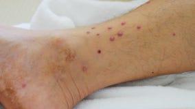 Alergia na nogach; widoczna alergia męskie nogi zdjęcie wideo