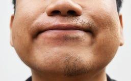 Algum bigode após o bigode da retirada na pele asiática nova de superfície da cara do homem não ciao por muito tempo Fotografia de Stock Royalty Free