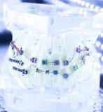 Aligners dentari dei sostegni dei denti Immagini Stock