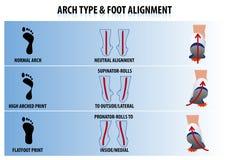 Alinhamento do tipo e do pé do arco ilustração royalty free