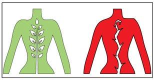 Alivio del acorde y ejemplo espinales del dolor stock de ilustración
