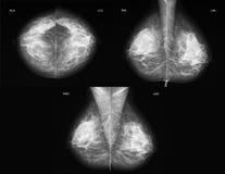 alla mammographyprojektioner Arkivfoto