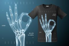 Allen is O.k. teken, Röntgenstraal van menselijke hand, t-shirtontwerp, modern drukgebruik voor sweatshirts, herinneringen en and Stock Fotografie