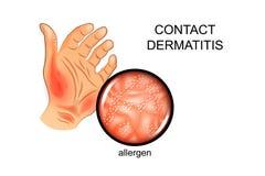 Allergen on the skin. Allergy, dermatology stock illustration