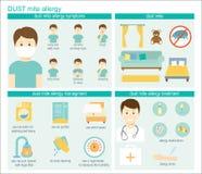 Allergia dell'acaro della polvere royalty illustrazione gratis