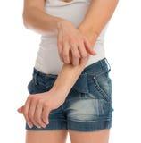 Allergia della giovane donna che graffia il suo braccio Fotografia Stock Libera da Diritti