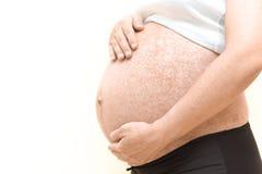 Allergia sulla pancia incinta Fotografia Stock