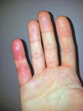 Allergic. Finger, hand, histamin, stress Royalty Free Stock Photography