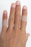 Allergic lesions in the plaster women. Allergic lesions in the plaster  asia women Stock Photos