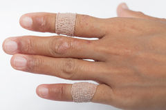 Allergic lesions in the plaster women. Allergic lesions skin women Asia thailand Royalty Free Stock Images