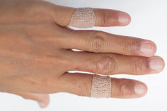 Allergic lesions in the plaster women. Allergic lesions skin women Asia thailand Royalty Free Stock Photo