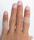 Allergic lesions in the plaster women. Allergic lesions skin women Asia thailand Stock Photo