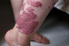 Allergic rash dermatitis eczema skin on leg of patient. Psoriasis and eczema skin with big red spots. Allergic rash dermatitis eczema skin on leg of patient Stock Photo