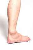 Allergic Rash Dermatitis Eczema Skin Of Patient Legs Royalty Free Stock Images