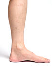 Allergic rash dermatitis eczema skin of patient legs. On white background Royalty Free Stock Image