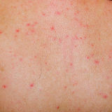Allergic rash dermatitis skin. Allergic rash dermatitis back skin of patient Stock Images