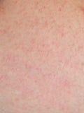 Allergic rash dermatitis skin Stock Photos