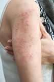 Allergic rash dermatitis Stock Photos