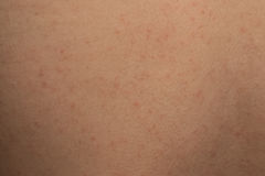 Allergic rash dermatitis skin Stock Photos