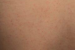 Allergic rash dermatitis skin. Texture of patient Stock Photos
