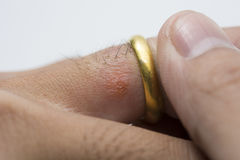 Allergic rash on finger. Closeup for allergic rash on finger gold ring Stock Images