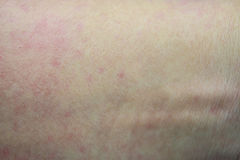 Allergic rash. Ill allergic rash dermatitis eczema skin of patient Royalty Free Stock Photos