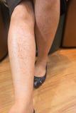 Allergic rash on the leg, skin of asia. Allergic rash on woman leg, skin of asia Stock Images