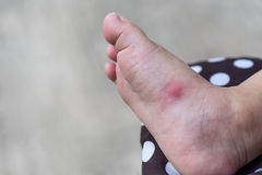 Allergic rash skin of baby`s right foot. Royalty Free Stock Image