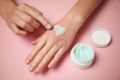 Allergic reaction on skin of hands. Red rash and hand care cream royalty free stock images