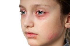 Free Allergic Reaction, Skin Rash, Close View Portrait Of A Girl`s Face. Redness And Inflammation Of The Skin In The Eyes And Lips. Stock Photos - 169364633