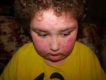 Allergic Reaction. An allergic reaction to an insect bite on a boy's face Royalty Free Stock Photography