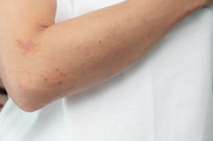 Allergic skin lesions on the arms Thailand Asian women. Stock Photo