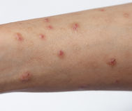 Allergic skin lesions on the arms Thailand Asian women. Stock Image