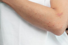 Allergic skin lesions on the arms Thailand Asian women. Royalty Free Stock Image