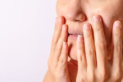 Allergic women have eczema dry nose and lips on winter season closeup. royalty free stock photo