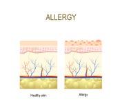 allergie gezond en huid met allergische reactie vector illustratie