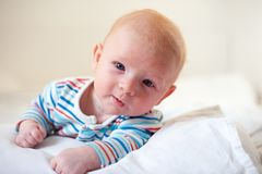 Allergies, atopic dermatitis. On the face of a baby stock image
