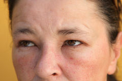 Allergies - swollen eyes and face. Close-up stock image